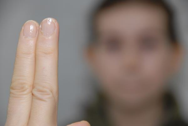 EMDR - Blicke folgen den Fingern
